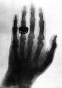 পৃথিবীর প্রথম এক্স-রে ফটোগ্রাফ। রন্টজেনের তোলা বার্থার হাতের সেই ছবি